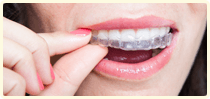 Discover_Invisalign_Clear-Braces